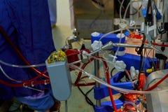 las diversas líneas de sangre ligaron a la máquina cardiopulmonar de puente Fotos de archivo
