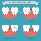 Las etapas de la enfermedad periodontal Imágenes de archivo libres de regalías
