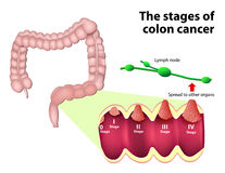 Las etapas del cáncer colorrectal Fotos de archivo