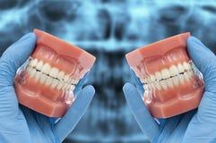 Las manos del dentista muestran el modelo dental que sonríe sobre radiografía Foto de archivo