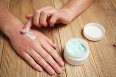 Las manos femeninas aplican la crema hidratante a la piel Irritación y alergias, congelación foto de archivo