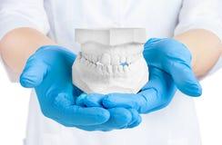 Las manos que sostienen el yeso dental modelan, concepto dental Fotografía de archivo