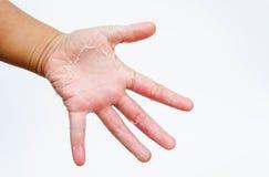 Las manos secas, cáscara, dermatitis de contacto, infecciones por hongos, piel inf Foto de archivo libre de regalías