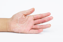 Las manos secas, cáscara, dermatitis de contacto, infecciones por hongos, piel inf foto de archivo