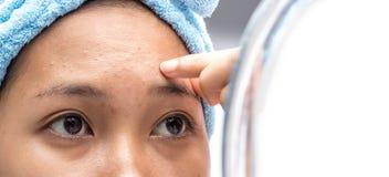Las mujeres están preocupadas de arrugas faciales fotografía de archivo