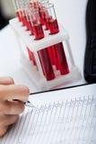 Las notas médicas y las muestras de sangre del doctor Imagen de archivo libre de regalías