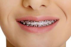Las paréntesis dentales Fotografía de archivo