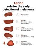 Las reglas de ABCD de cáncer de piel Fotos de archivo libres de regalías