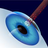 Laser-ögonkorrigering stock illustrationer