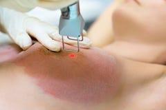 Laser-borttagning av elasticitetsfläckar på hudbröstet arkivbilder