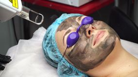 Carbon peeling. Laser cosmetologist removes the old skin along with the carbon fiber layer. Carbon peeling. Shooting close-ups stock video footage