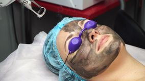 Carbon peeling. Laser cosmetologist removes old skin along with carbon fiber layer. Treatment of forehead zone. Carbon peeling. Shooting close-ups stock video