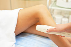 Laser epilation Stock Images