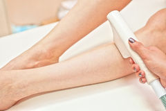 Laser epilation Royalty Free Stock Image