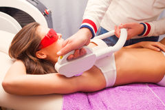 Laser epilation Royalty Free Stock Photography
