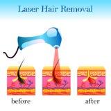 Laser-hårborttagning, struktur av cellen och en laser-apparatur stock illustrationer