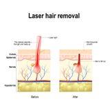 Laser-Haar-Abbau Dampf steigt von erhitztem Wasser stock abbildung
