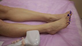 Laser hair removal procedure on female legs stock footage