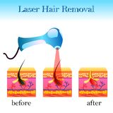 Laser hair removal, structure of the cell and a laser apparatus stock illustration