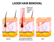Laser hair removal. Vector diagram. The laser emits an invisible light which penetrates the skin without damaging it. At the hair follicle, the laser light Stock Photo