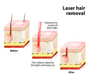 Laser hair removal. Vector diagram. The laser emits an invisible light which penetrates the skin without damaging it. At the hair follicle, the laser light Royalty Free Stock Photos