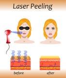 Laser peeling, vector illustration with before after effect vector illustration