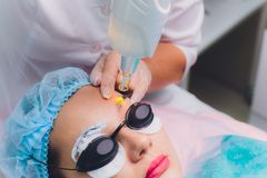 Laser removal of a permanent make-up on a face. Closeup young woman receiving correction of a tattoo on eyebrows