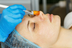 Laser RF-rejuvenation. Elos rejuvenation Stock Images