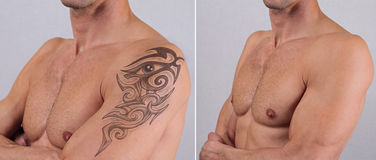 Laser tattoo removal before and after. Attractive Man with tattoo on his arm Stock Photo
