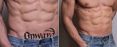 Laser tattoo removal before and after. Attractive Man with tattoo on his stomach skin Royalty Free Stock Image