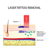 Laser tattoo removal. How Does Laser Tattoo Removal Work. Dark ink absorb light and break down. White blood cells to consume the destroyed ink particles and Stock Photos