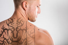 Laser Tattoo Removal On Man`s Back. Laser Tattoo Removal On Shirtless Man`s Back Against Grey Background stock images