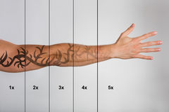 Laser Tattoo Removal On Man`s Hand. Against Grey Background royalty free stock photos