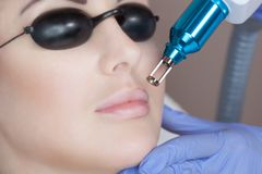 Laser tattoo removal on woman`s on lips. In a beauty salon royalty free stock photo