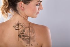 Laser Tattoo Removal On Woman`s Shoulder. Against Gray Background stock image