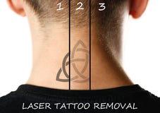 Laser-tatueringborttagning close upp På vitbakgrund royaltyfri bild