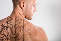 Laser-tatueringborttagning på baksida för man` s arkivbilder
