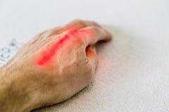 Laser treatment on hand Stock Photos