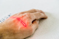 Laser treatment on hand Royalty Free Stock Photography