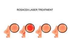 Laserbehandeling van rosacea stock afbeelding