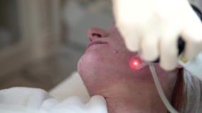Lasergesichtshaut, die in einer medizinischen Klinik erneuert stock video