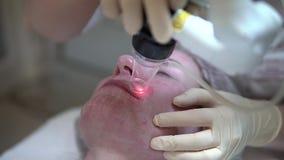 Lasergesichtshaut, die in einer medizinischen Klinik erneuert stock footage