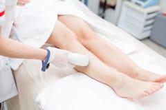 Laserowa epilacja i kosmetologia Włosiany usunięcie na dam nogach przy kosmetyczną piękno zdroju kliniką Kosmetologii procedura o Fotografia Royalty Free