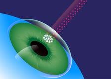 LASIK, centro dell'occhio, chirurgia dell'occhio del laser Fotografie Stock Libere da Diritti
