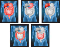 Lastre radioscopiche degli organi umani illustrazione vettoriale