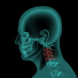 Lateral x-ray view of human skull and neck stock illustration