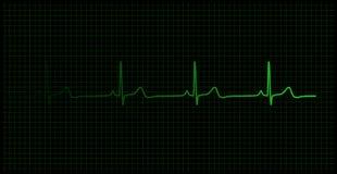 Latido del corazón en el vector del monitor Foto de archivo