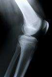 Lato ginocchio/dei raggi X Fotografie Stock Libere da Diritti