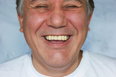 Laughing man with false teeth Stock Images