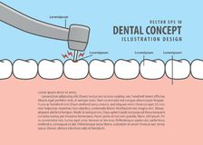 Layout decay tooth treatment Caries cartoon style for info or. Book illustration vector. Dental concept Royalty Free Stock Photos